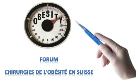 Chirurgie de l'obésité en Suisse Index du Forum